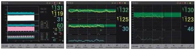 Примеры экранов фетального монитора Comen STAR5000С