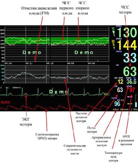 Значение параметров экрана фетального монитора Comen STAR5000С