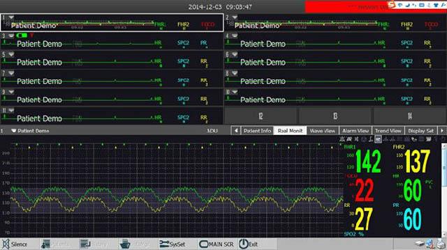 Возможность подключения монитора пациента к проводной/беспроводной сети централизованной станции мониторинга