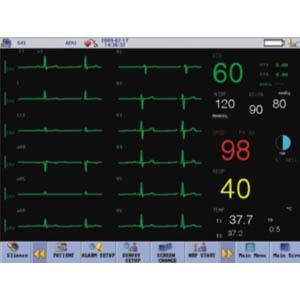 CardioTecTM ЭКГ по 12 каналам (по 12 синхронным отведениям)